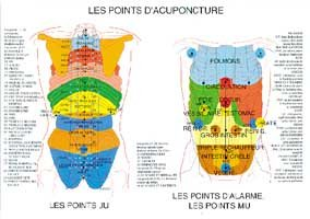 Poster plastifié Points d'acupuncture (A2)